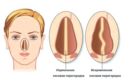 Ухо, Горло, Нос — оториноларингология